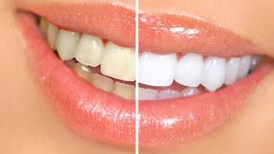 Photo of Let's Talk About Some Amazing Benefits of Crest Whitening Strips UK