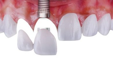 Photo of A Verbal Implant Supported Bridge For Changing A Row Of Missing Teeth