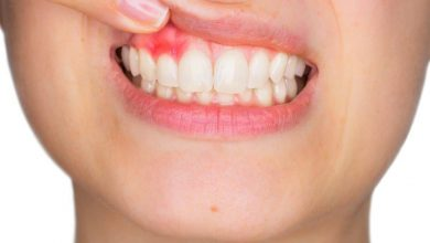 Photo of Lesser Known Facts of Dental Abscess