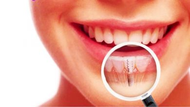 Photo of Is Undergoing Dental Implants Painful?