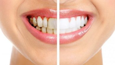 Photo of What might be the Reason for Stains and Discolorations to Your Tooth?